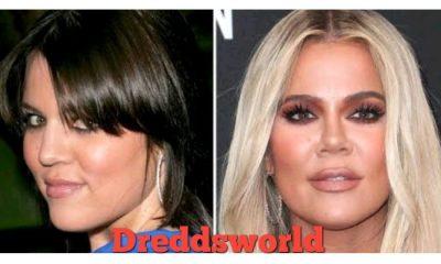 Khloe Kardashian Admits To Having A Nose Job: 'No One's Ever Asked Me'